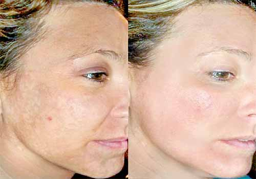 laser fraxel cicatrices acne